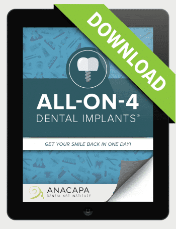 AO4 Implant Ebook